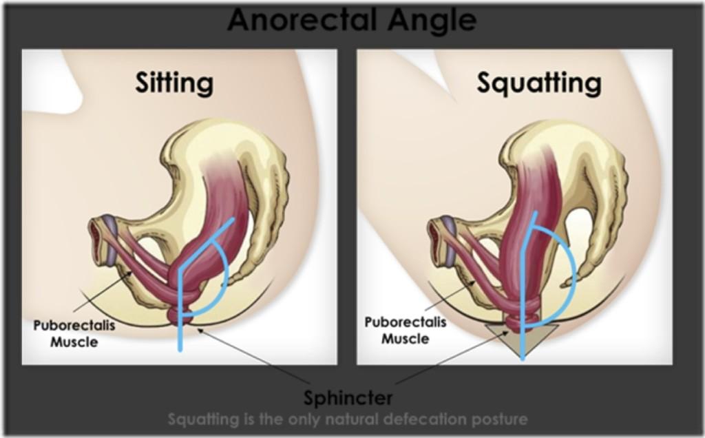 Shitting posture
